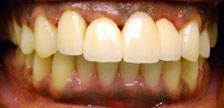 Orange New Jersey dental implants image